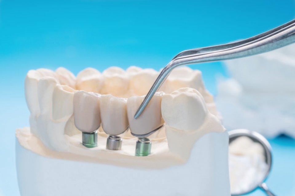 Implantologia dla asystentek stomatologicznych (teoria+warsztaty)
